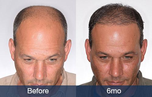Hair Transplant After 6 Months Pai Medical Group Nashville We