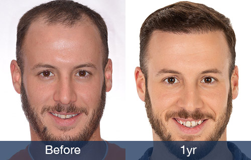 front-1yr